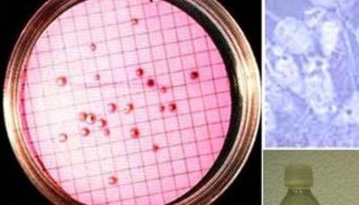 Análisis microbiológico